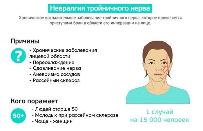 невралгия лицевого нерва симптомы лечение