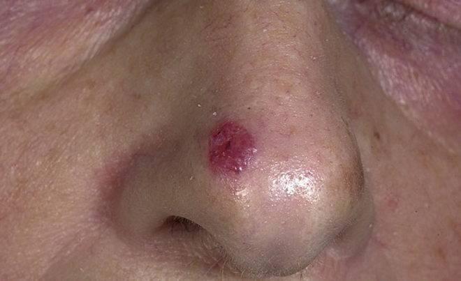 Наросты в носу: причины и лечение. что делать? диагностика