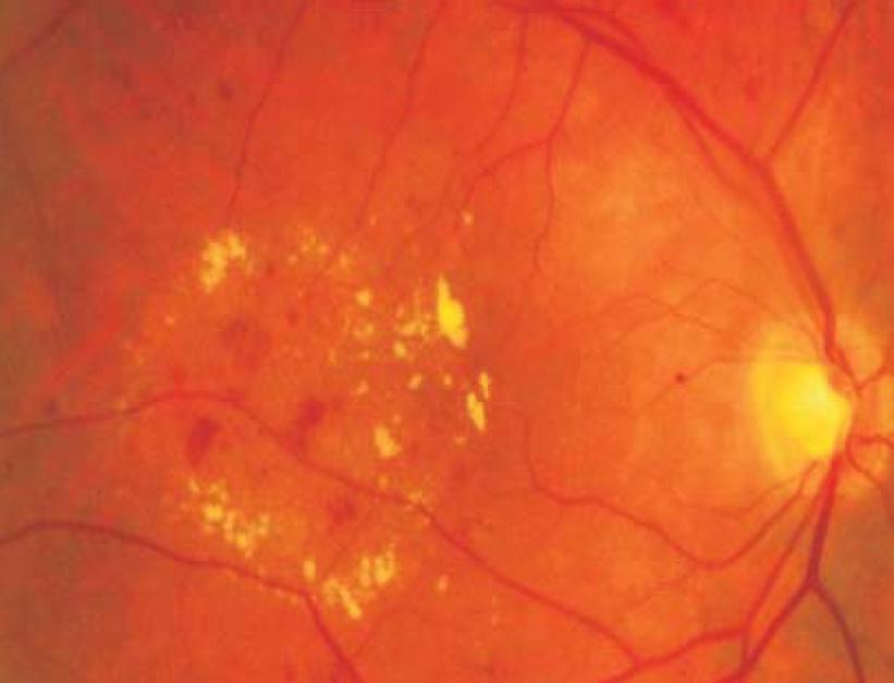 Отек сетчатки глаза причины - лечение глаз