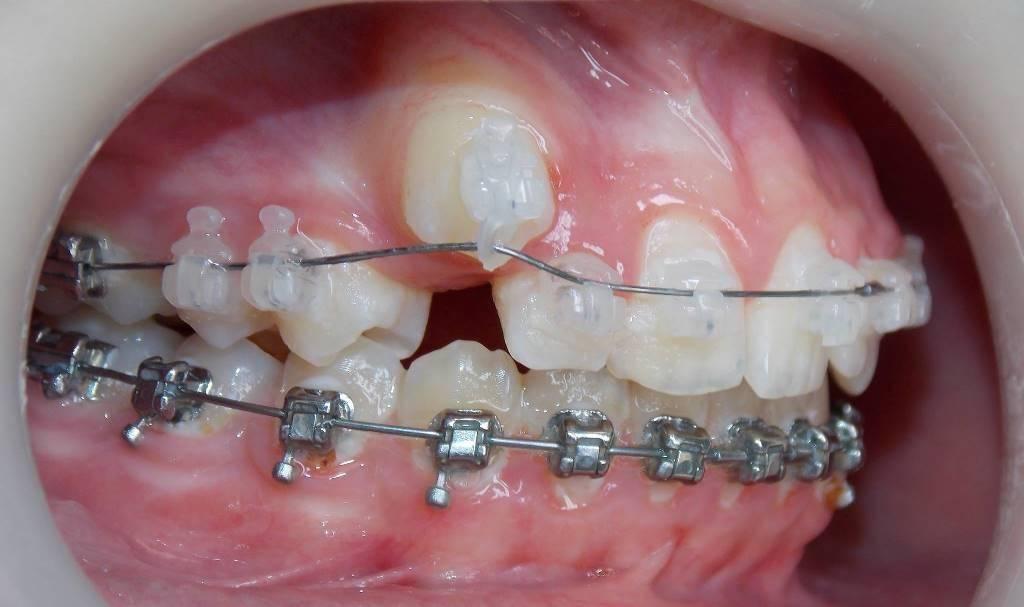 Ортодонтия в стоматологии — что это такое, кто такой ортодонт