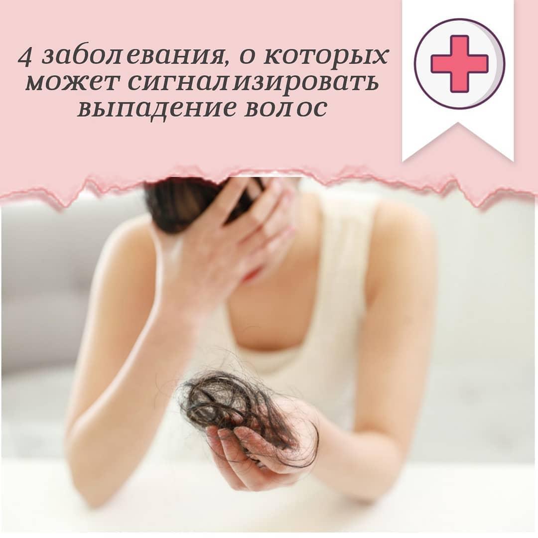 Могут ли выпадать волосы из-за заболеваний щитовидки