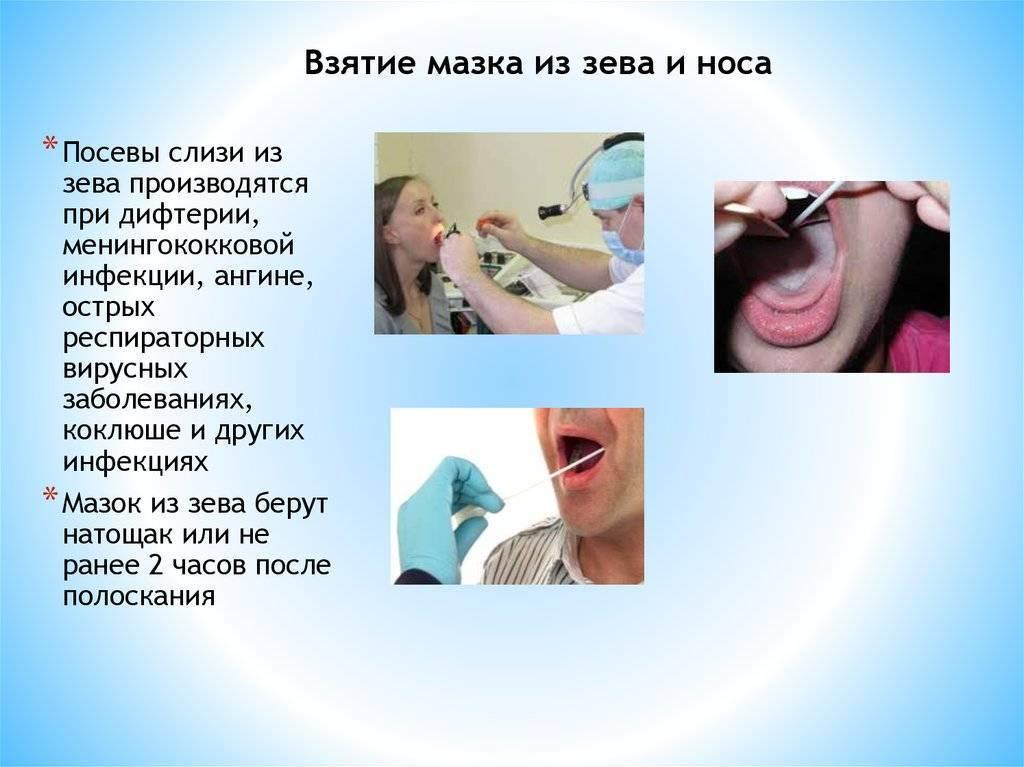 Мазок из горла – цели исследования: результаты и как подготовиться