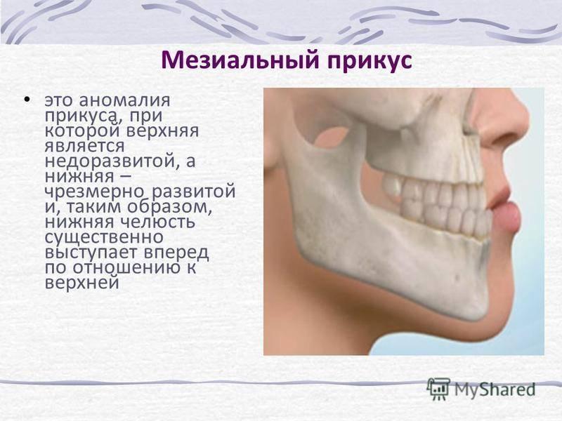 Мезиальный прикус операция