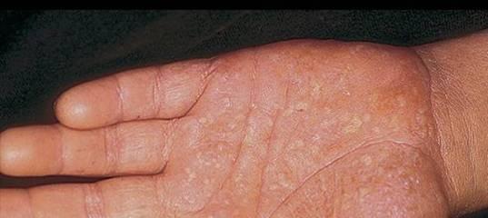 Генерализованный пустулезный псориаз. пустулезный (экссудативный) псориаз: причины развития, симптомы и лечение