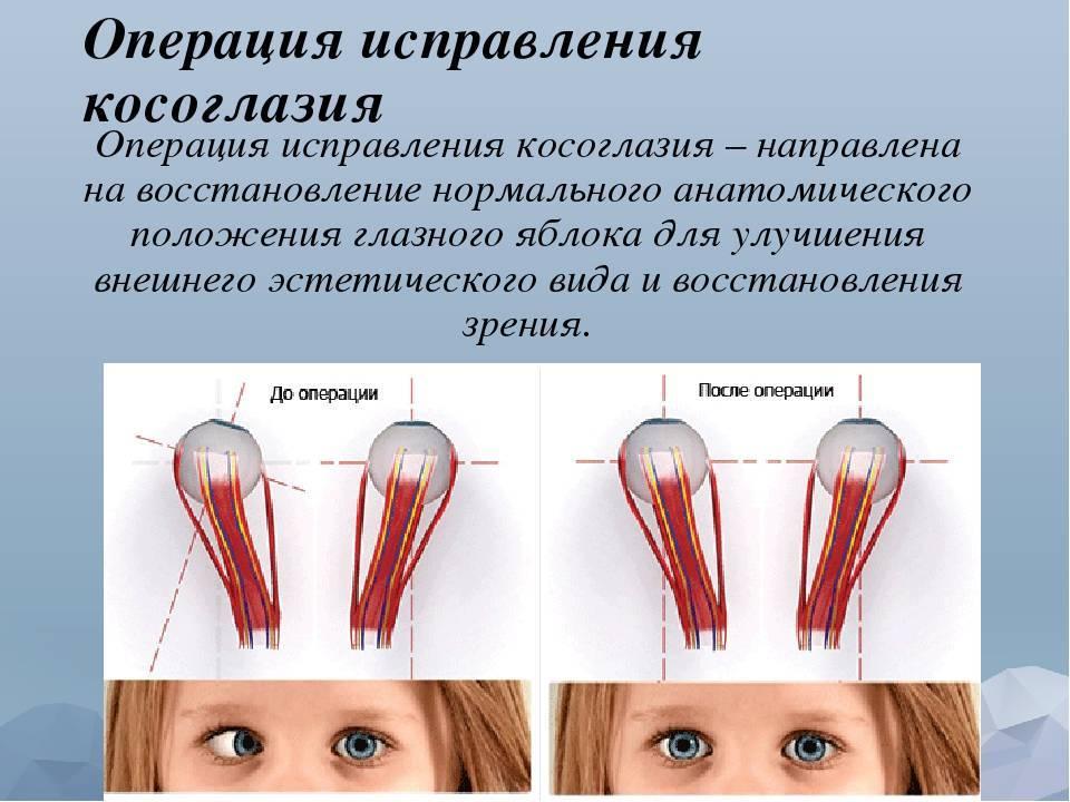 Операция на косоглазие и восстановление после нее
