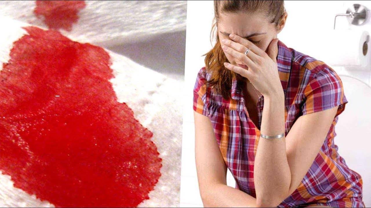 Кровоточит наружный геморрой