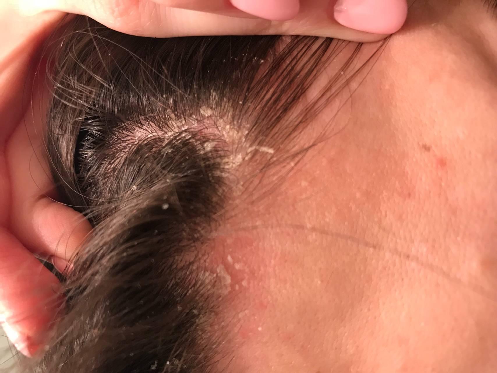 Псориаз в ушах (ушных раковинах): причины, симптомы, диагностика и лечение