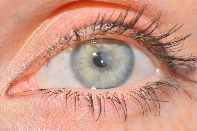 помутнение роговицы глаза у человека лечение
