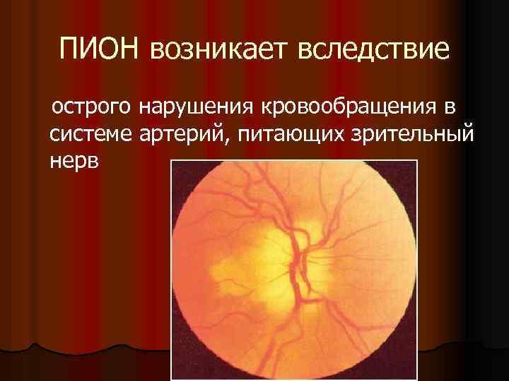 задняя ишемическая нейропатия зрительного нерва
