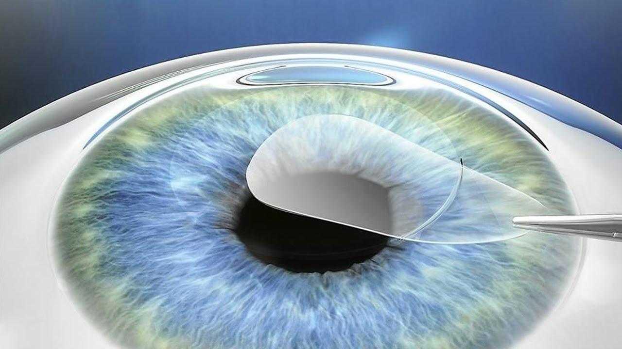 Стоит ли отдавать предпочтение лазерной коррекции зрения?