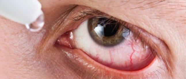 острый эписклерит глаза