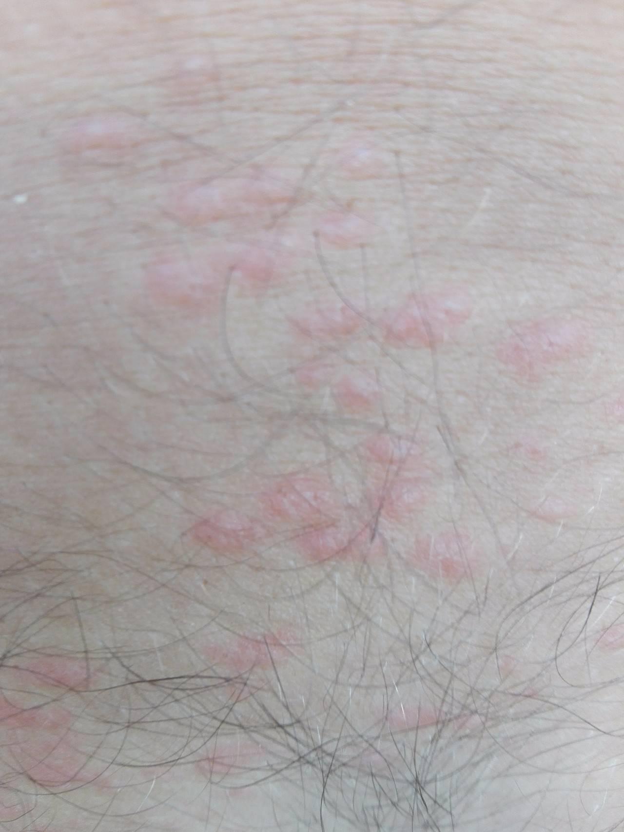 Псориаз на половых органах у мужчин и женщин: лечение псориаза в паху и на гениталиях
