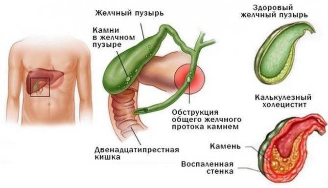 Хронический бескаменный холецистит