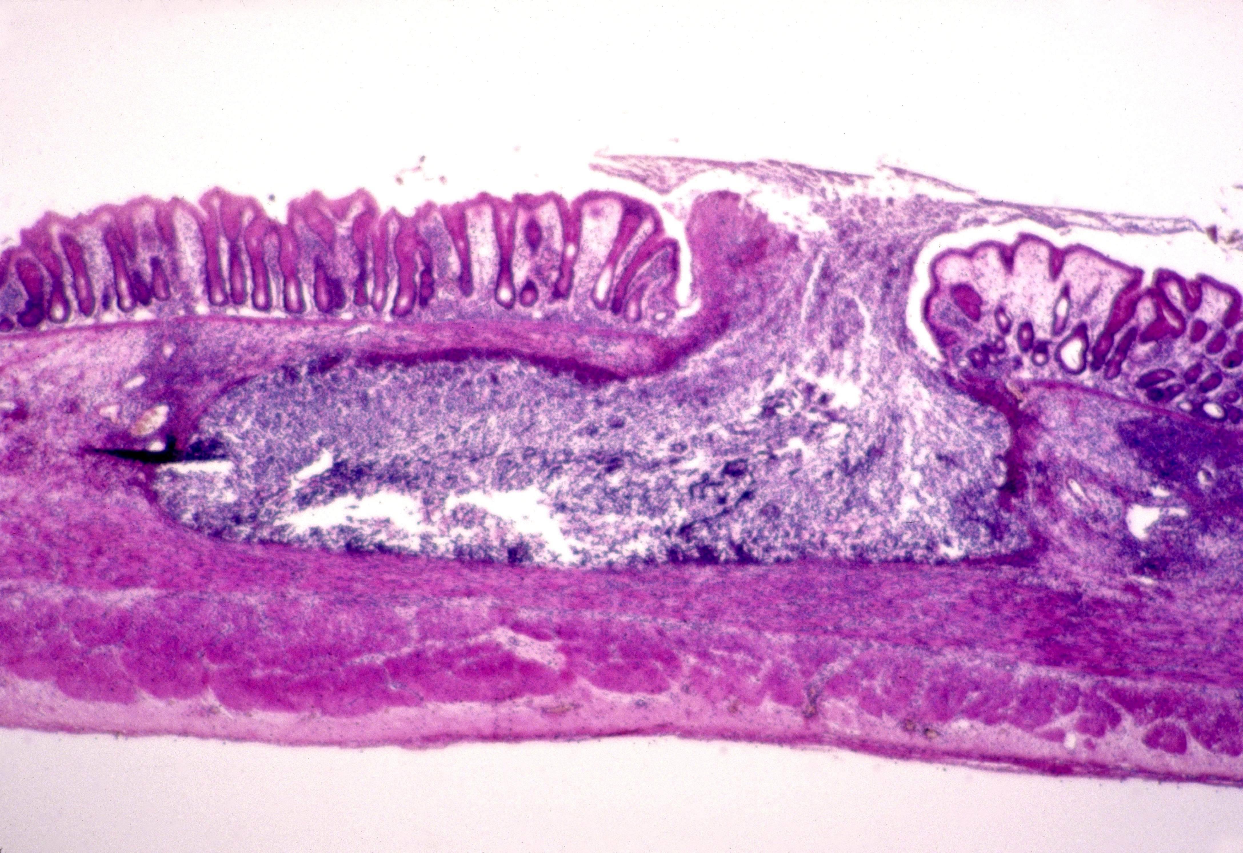 Кишечная амеба: ее диагностика и лечение