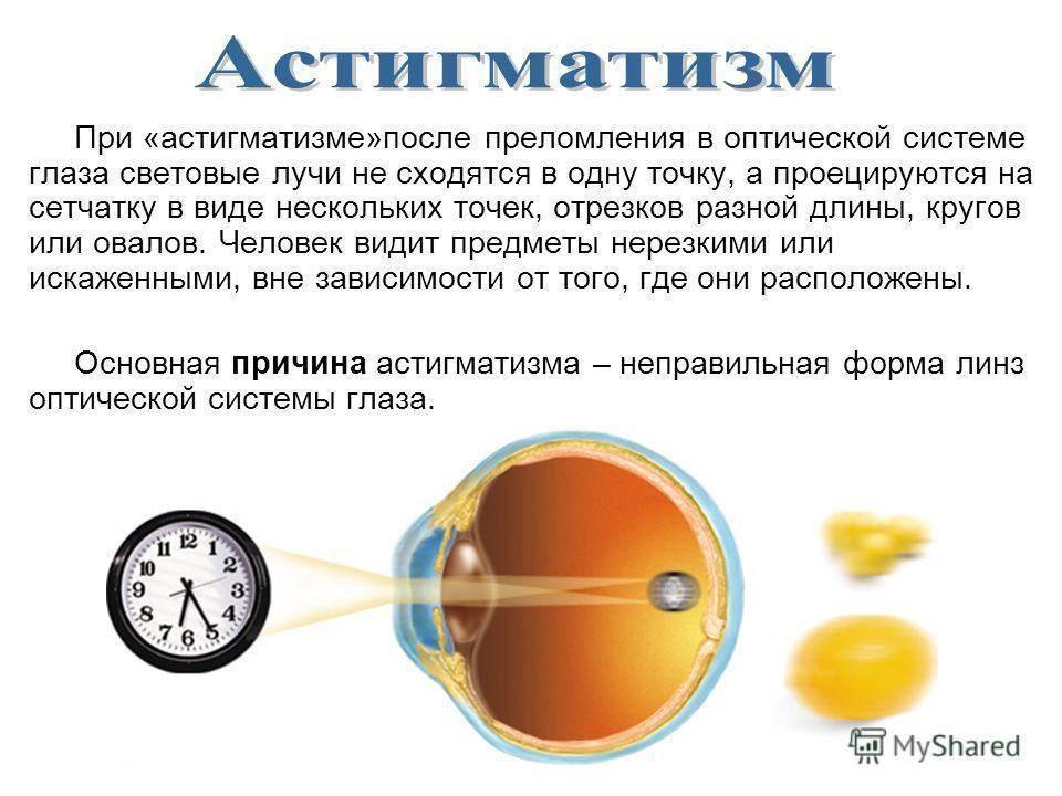Астигматизм — что это такое и как правильно лечить