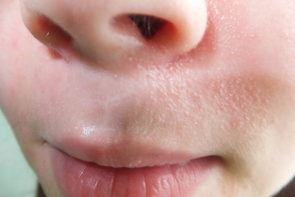Герпес под носом: симптомы, причины, как и чем лечить (медикаментами, народными средствами)