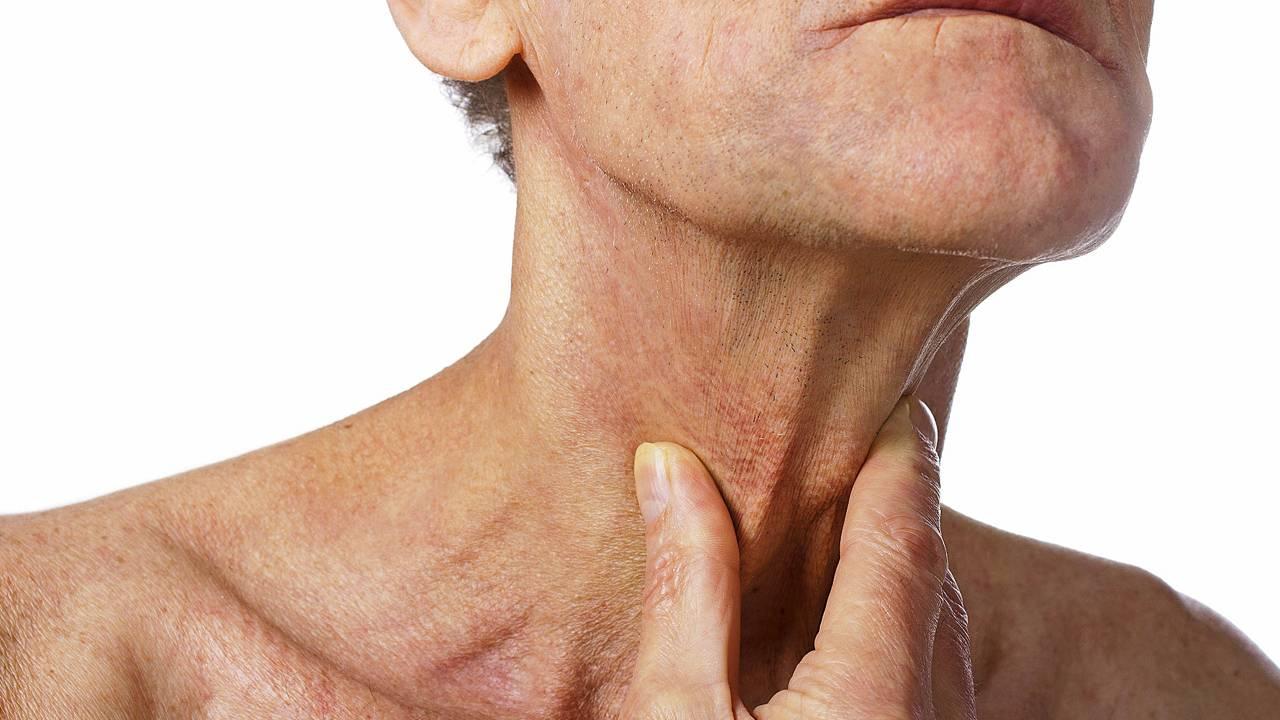 что такое рак горла