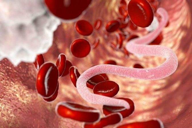Лечение аскаридоза народными средствами, симптомы