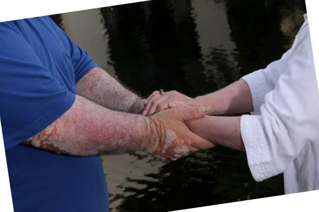 Как проявляется псориаз на руках?