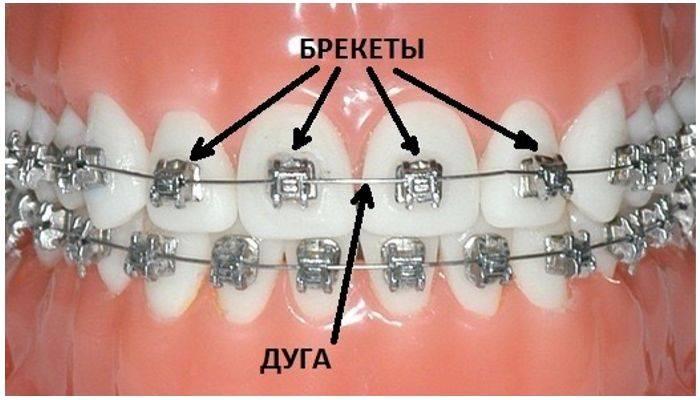 Дуги для брекетов — виды механизма исправления кривизны зубов