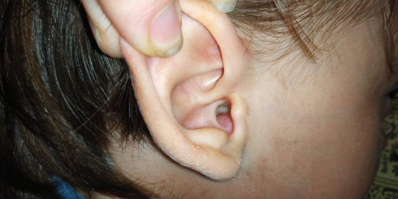 Выделения из уха у ребенка