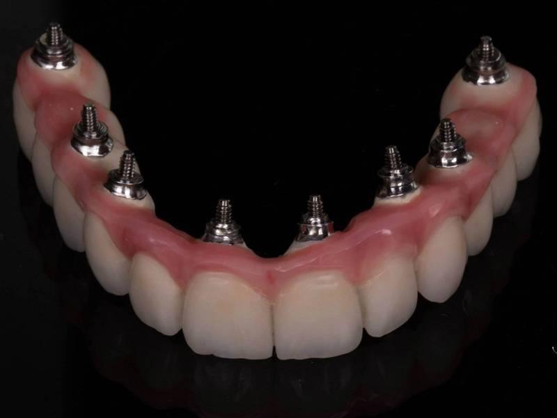 Съемные зубные протезы: преимущества и уход