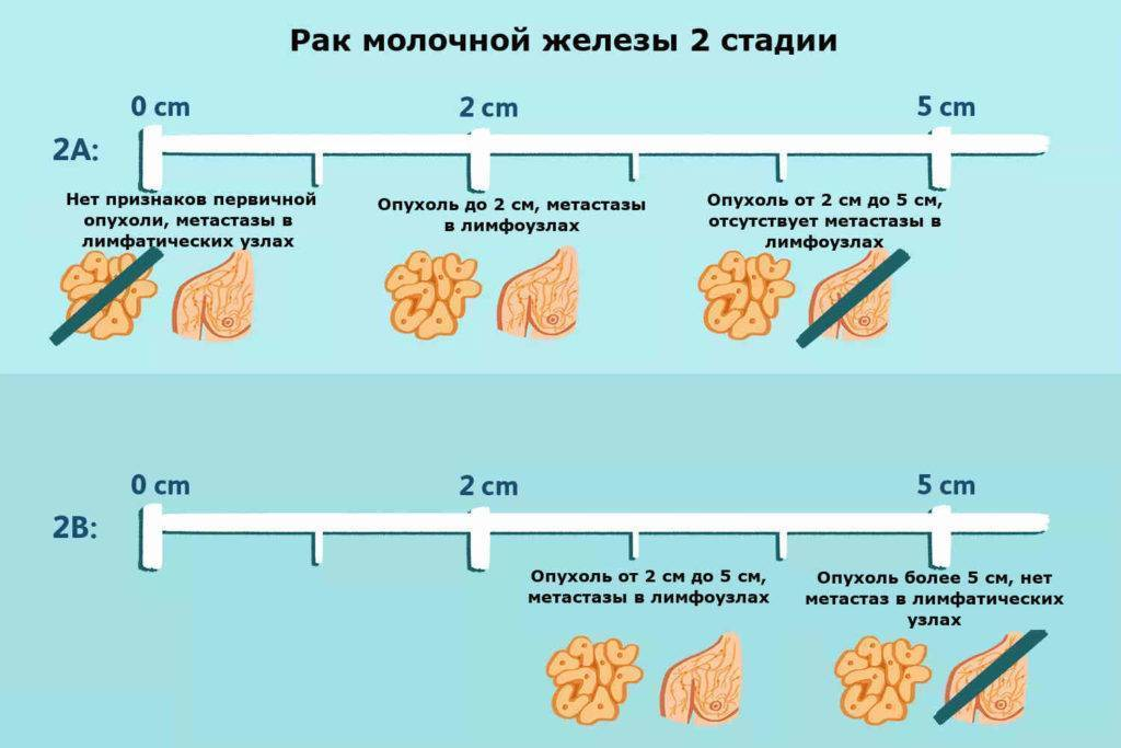 рак молочной железы стадии классификация
