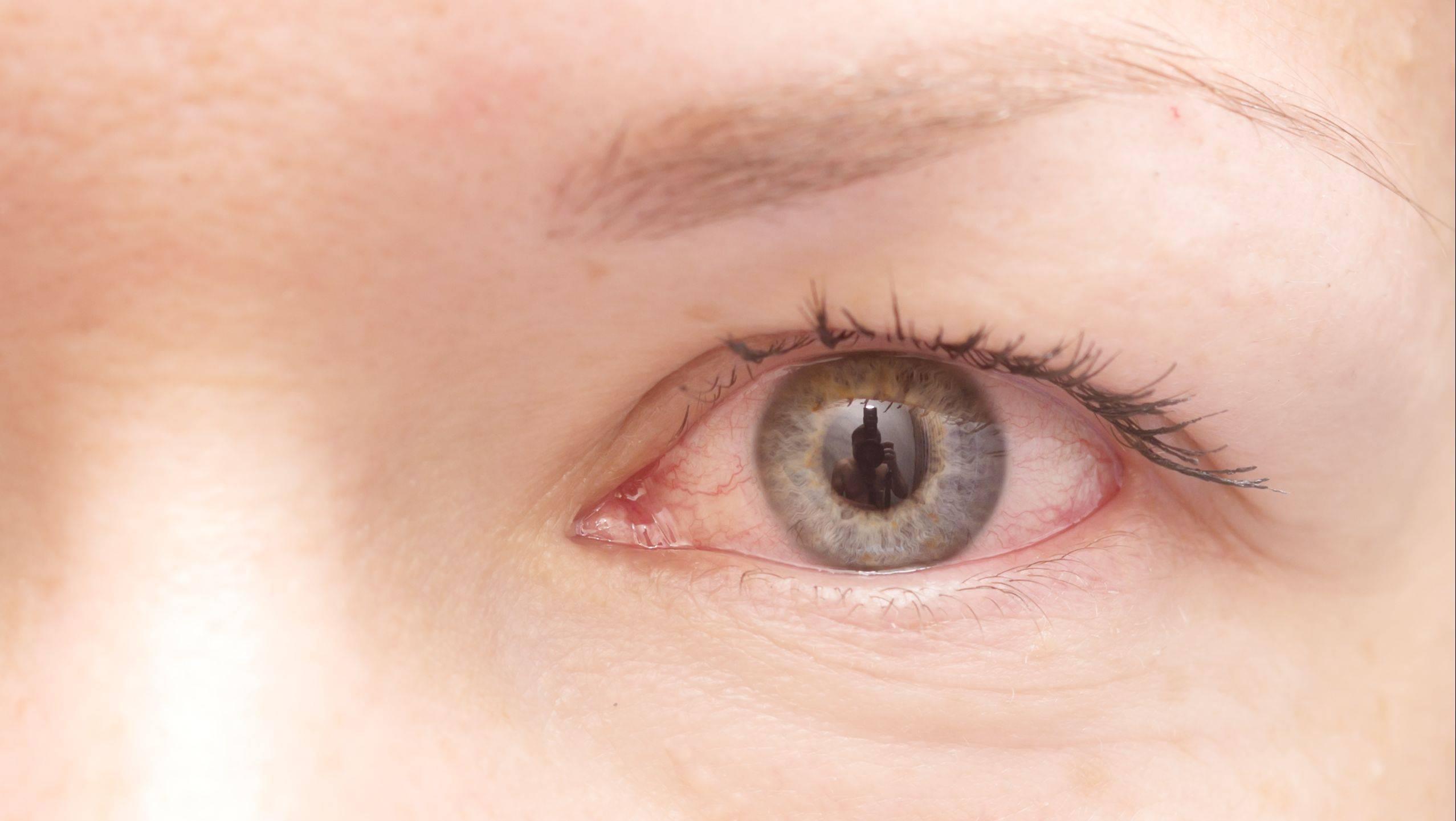 ирит заболевание глаз