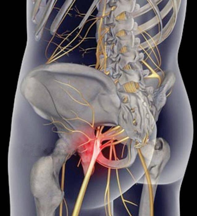 Невралгия спины