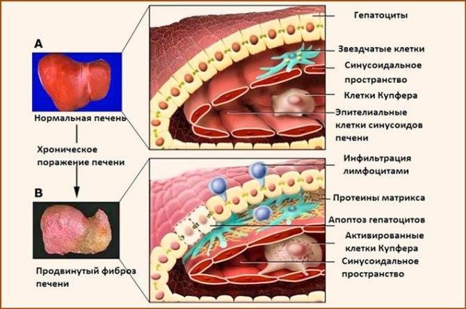 Фиброз печени: симптомы, сколько живут с таким диагнозом