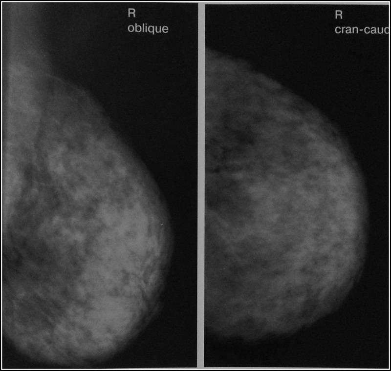 диффузно фиброзная мастопатия молочной железы