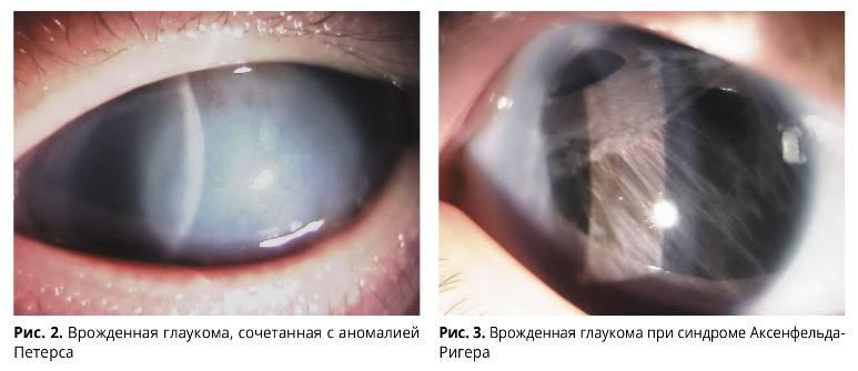 Что такое врожденная глаукома?