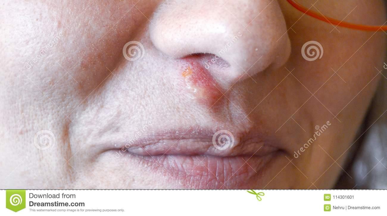 Герпес в носу: симптомы, как и чем лечить (мазь, лекарства, народные средства), причины и пути заражения, осложнения при беременности и у детей (фото)