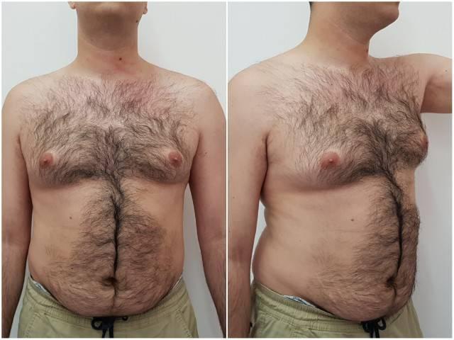 операция гинекомастия