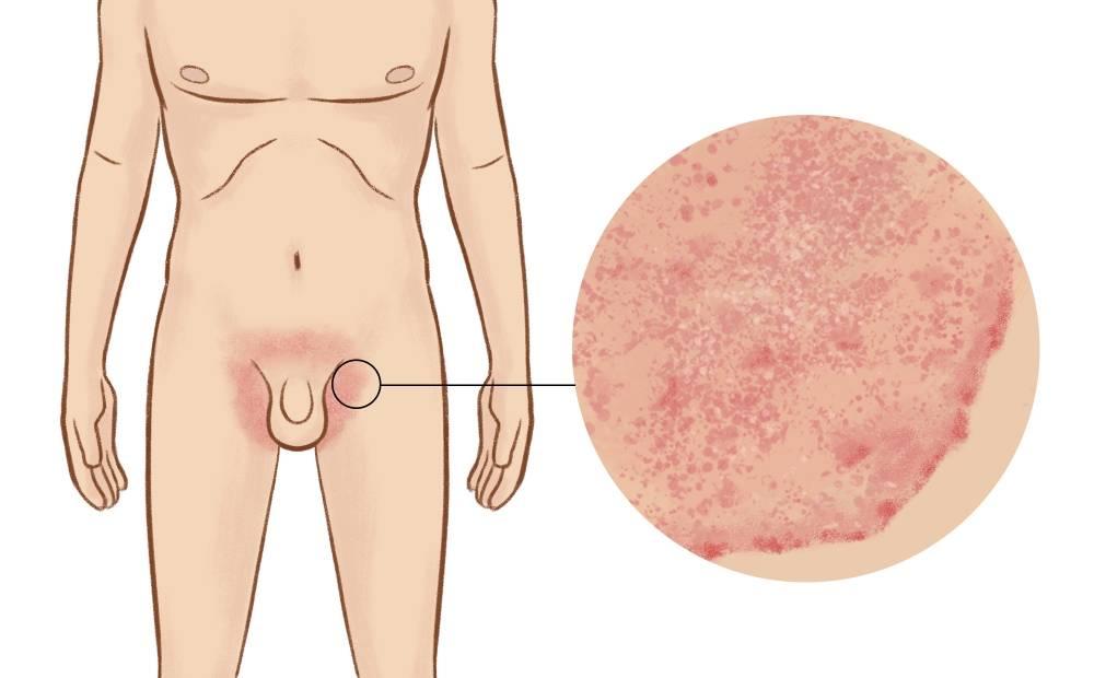 Генитальный герпес у женщин и мужчин: симптомы, причины и лечение