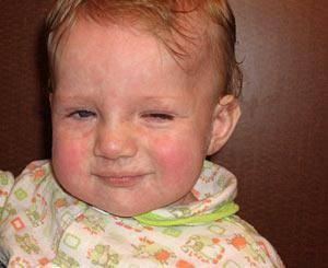токсоплазмоз симптомы у детей