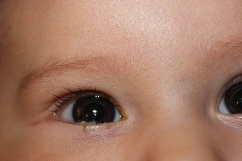 белые выделения из глаз у ребенка
