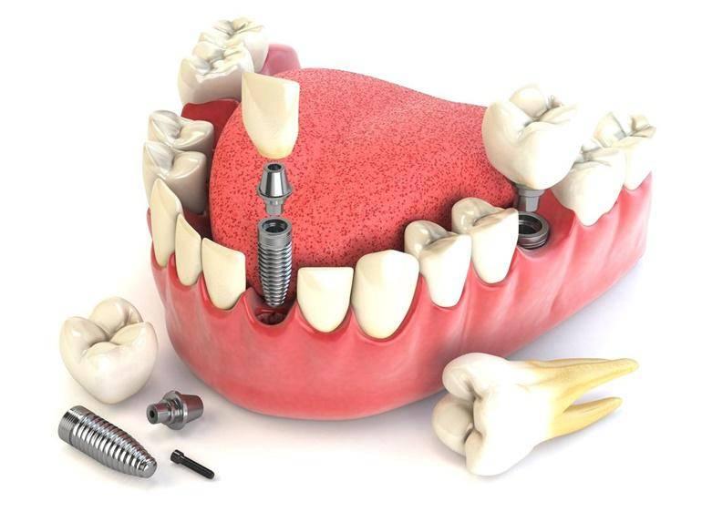 зубное протезирование виды