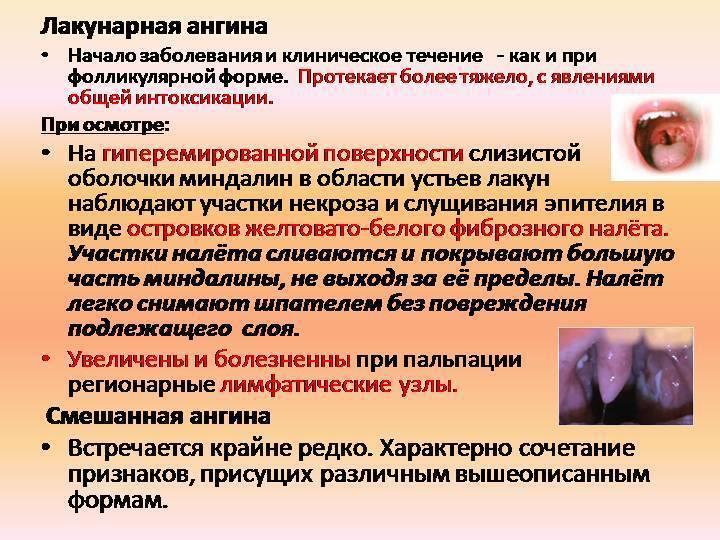 Лакунарная ангина: фото, симптомы, лечение лакунарной ангины