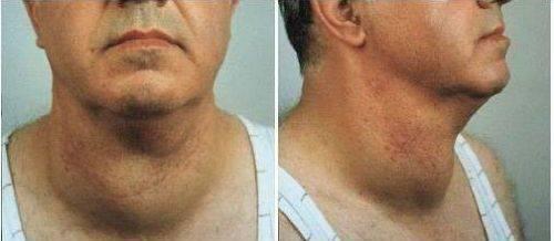 где находится щитовидная железа у мужчин
