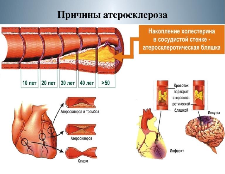 от чего бывает атеросклероз