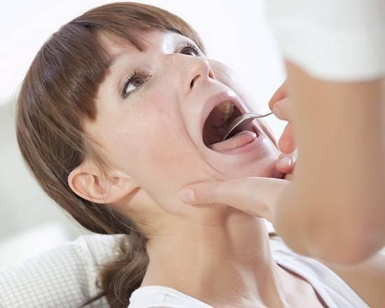 Кандиды в горле симптомы