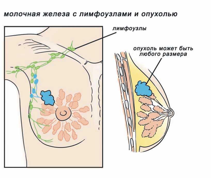 стадирование рака молочной железы