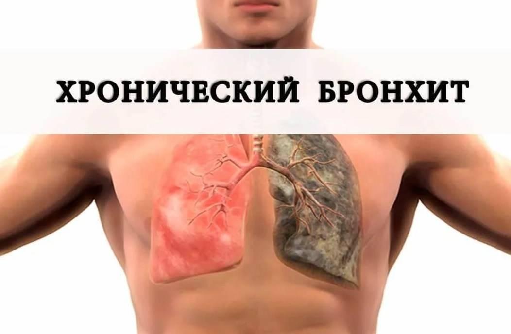Лечение застарелого кашля народными средствами