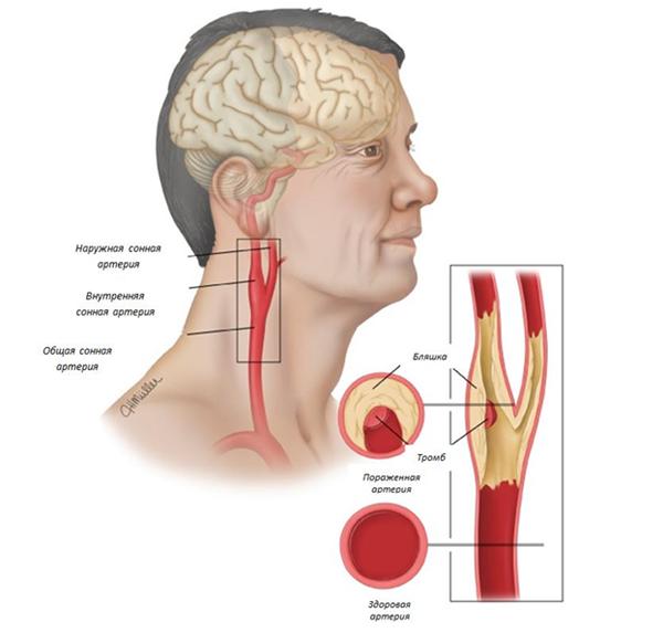 лечение шейного атеросклероза