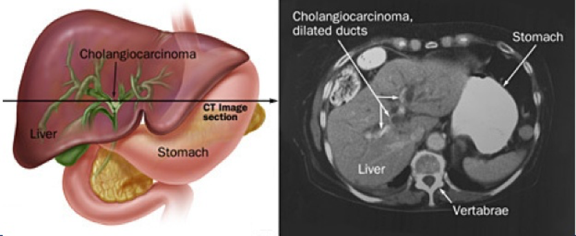 холангиокарцинома печени прогноз выживания