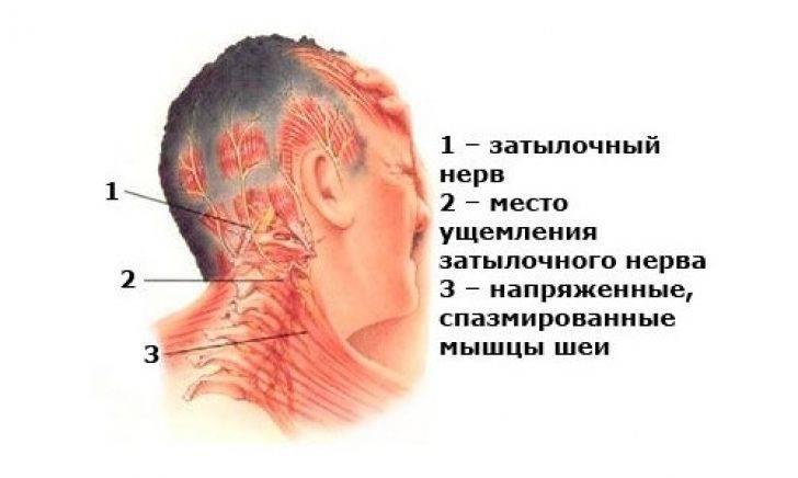 Невралгия затылочного нерва: симптомы и лечение воспаления — симптомы