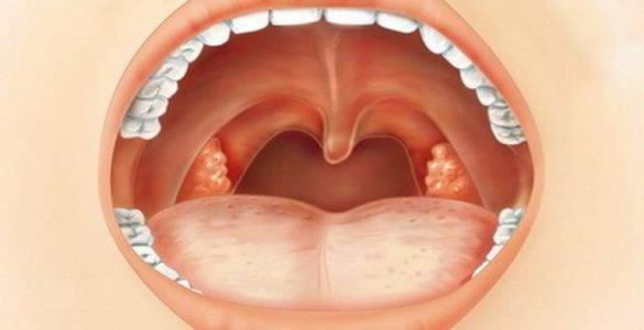 Когда возможно лечение ангины без антибиотиков?