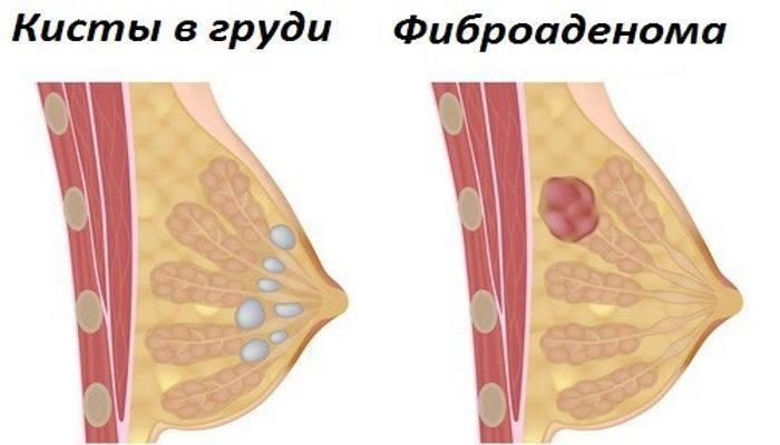 Диагностика и лечение кисты молочной железы
