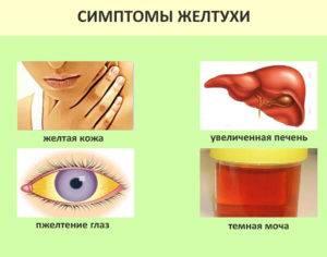 желтуха лечение в домашних условиях